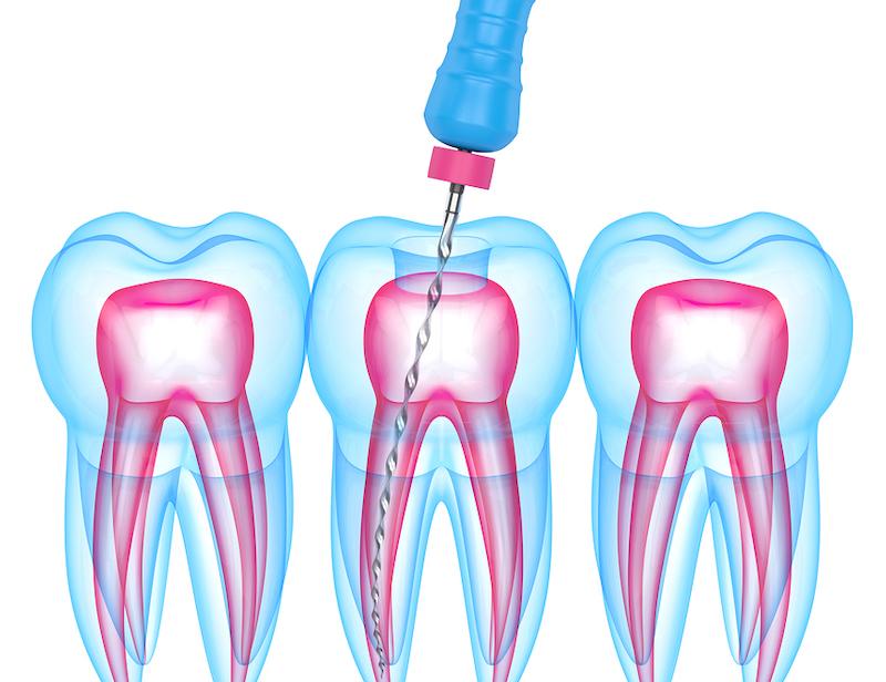 urgent dental clinic Houston