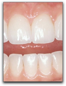 Custer fast teeth whitening