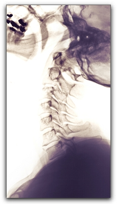 Weymouth Chiropractors Treat Whiplash